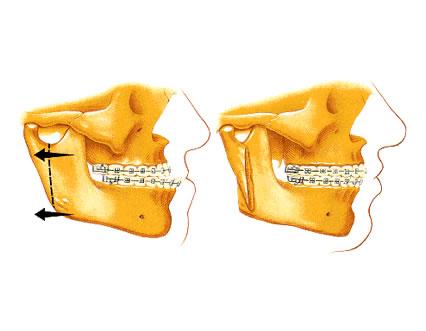 orto pentru tratament articular deteriorarea umărului de sax de deal